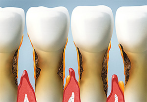 Canton dentist | gum disease treatment, bleeding gums  | Sensible Dentistry