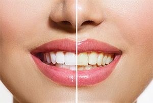Canton dentist | teeth whitening | Sensible Dentistry